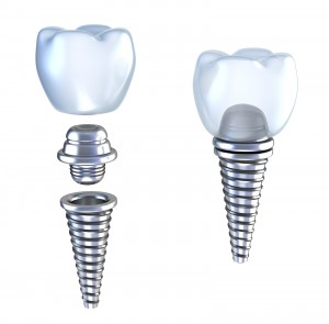 bigstock-Dental-implant-d-crown-with-p-14220674