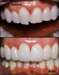 Bonding And Veneers Dr Seema Steffens Family Dentistry